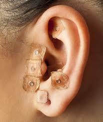 Auriculoterapia é a utilização de pontos nas orelhas para tratamento de diversos sinais e sintomas comuns em diferentes patologias e atua no âmbito físico, mental e emocional do paciente.